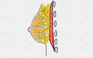 クーパー靭帯が切れるとバストが下垂する